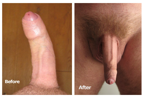 Bent penis, curved penis, penis curvature solution